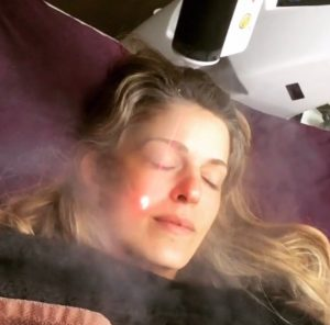 woman lying down receiving a cryo facial treatment